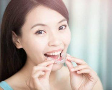 Người dùng niềng răng trong suốt có thể tự tháo lắp khiăn nhai hay vệ sinh răng