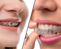 So với quy trình niềng răng bằng mắc cài thông thường quy trình niềng răng invisalign có nhiều điểm mới hơn