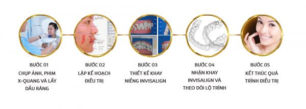 Quy trình niềng răng invisalign đạt chuẩn quốc tế