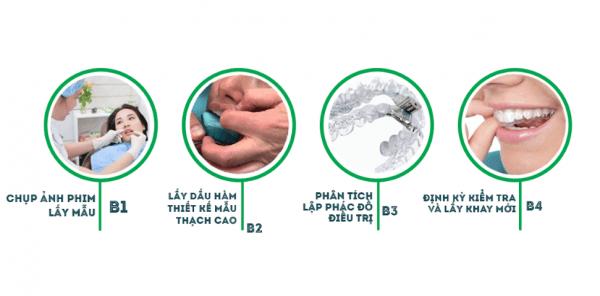 Quy trình niềng răng không mắc cài thực hiện qua 4 bước