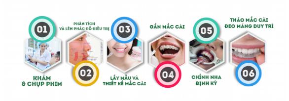 Quy trình niềng răng mắc cài truyền thống an toàn – hiệu quả