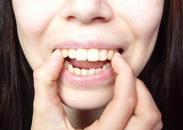 Răng hô không chỉ gây mất thẩm mỹ mà còn ảnh hưởng sức khỏe