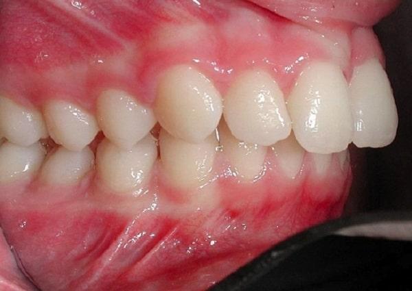 Hàm răng hô khiến bạn mất tự tin