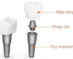 Răng implant sẽ bao gồm 3 bộ phận: trụ implant, khớp nối Abutment và mão sứ