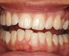 Răng khấp khểnh là tình trạng phổ biến hiện nay
