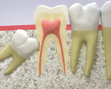 Răng khôn mọc lệch có thể làm hỏng răng số 7 bên cạnh