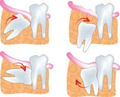 Răng khôn mọc lệch có nhiều dạng và mức độ khó khác nhau