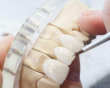 Bọc răng sứ đang là xu hướng thịnh hành hiện nay