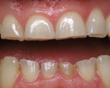 Răng sứ bị mòn mặt nhai khi nhìn vào sẽ thấy bằng phẳng hơn bình thường
