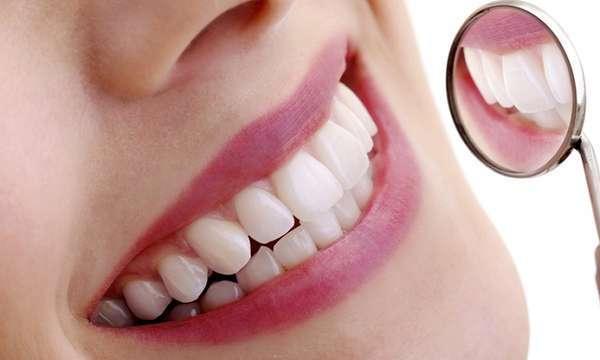 Bọc răng sứ có thể chữa hô hiệu quả