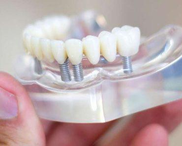 Răng sứ Emax có độ cứng khá thấp, không thích hợp để làm cầu răng sứ dài