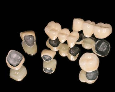 Răng sứ kim loại có những ưu điểm và hạn chế riêng
