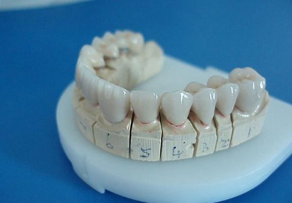 Bọc răng sứ kim loại là giải pháp khi muốn tiết kiệm chi phí