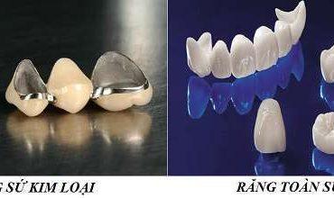 Răng sứ kim loại và răng toàn sứ đều có thế mạnh – hạn chế riêng