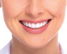 Bọc răng sứ giúp nụ cười tươi tắn, rạng rỡ hơn