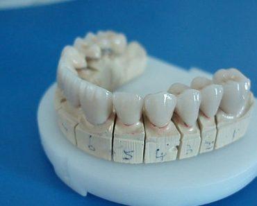 Bạn có thể chọn bọc răng sứ Titan để tiết kiệm chi phí