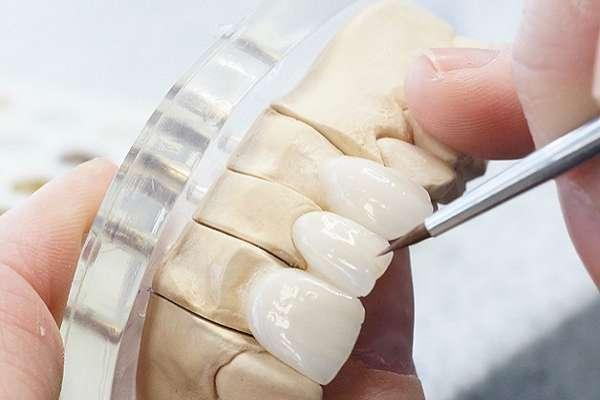 Răng sứ UT-Smile được chế tác tỉ mỉ, chính xác đến từng chi tiết nhỏ