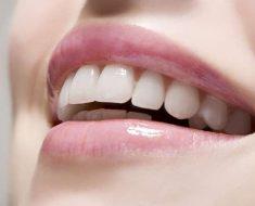 UT-Smile – Lựa chọn lý tưởng trong thẩm mỹ răng sứ