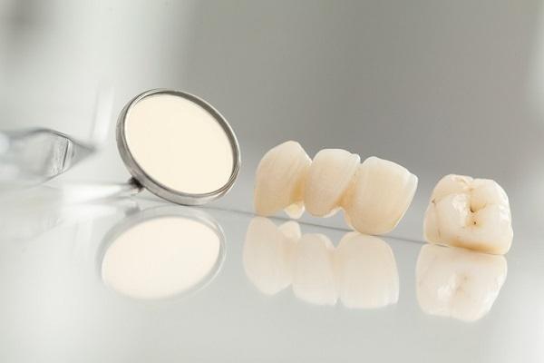 Răng sứ UT-Smile có khả năng chịu lực cao gấp 7 lần răng thật