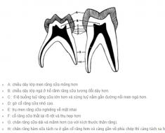 Sự khác nhau về hình thể giữa răng sữa và răng vĩnh viễn