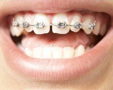 Bệnh nhân bị răng thưa không cần thiết phải nhổ răng