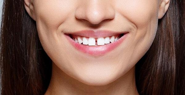 Răng thưa khiến nụ cười của bạn kém duyên
