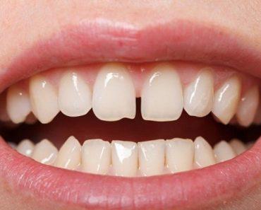 Răng thưa làm nụ cười của chúng ta kém duyên
