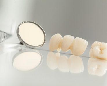 Răng toàn sứ có tuổi thọ cao hơn so với răng sứ kim loại