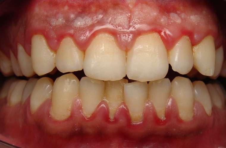 Răng sứ giá rẻ, kém chất lượng có thể gây viêm lợi sau khi phục hình