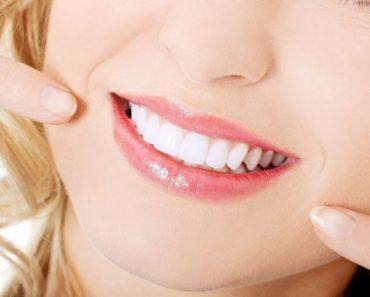 Tẩy trắng răng giá bao nhiêu