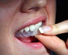 Tẩy trắng răng bằng máng tẩy tại nhà