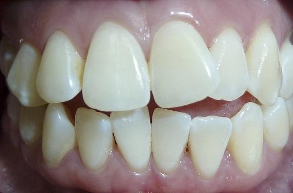Thời gian niềng răng không mắc cài phụ thuộc vào tình trạng răng miệng của bệnh nhân