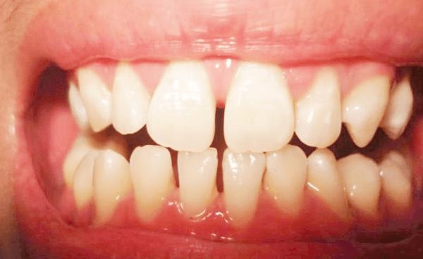 Thời gian niềng răng thưa phụ thuộc vào tình trạng sức khỏe răng miệng của bạn