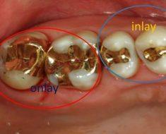 Trám răng inlay và onlay bằng vàng