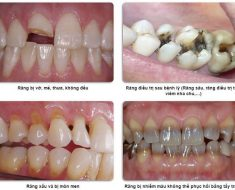 Các trường hợp nên bọc răng sứ nguyên hàm
