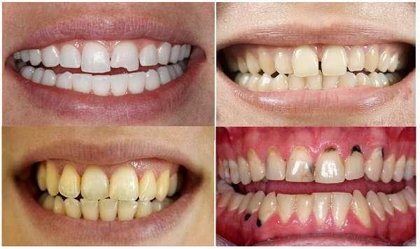 Một số trường hợp nên bọc răng sứ UT Smile