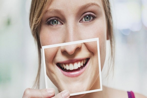 Niềng răng mắc cài mặt trong đảm bảo tính thẩm mỹ cho khách hàng