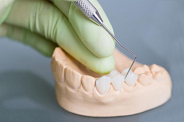 Vật liệu chế tác răng sứ cần đảm bảo về độ cứng, tính thẩm mỹ và an toàn