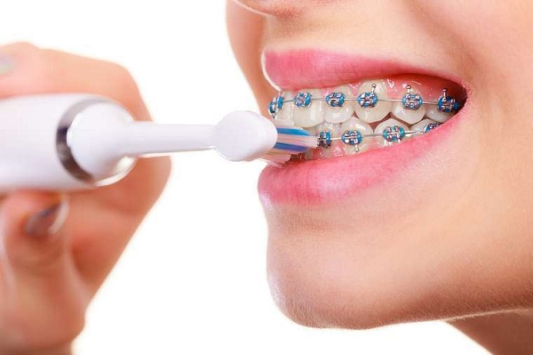Chú ý vệ sinh răng miệng sạch sẽ trong quá trình niềng răng