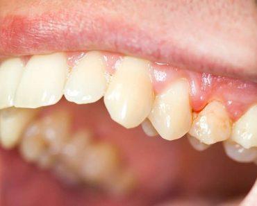 Viêm lợi sau khi bọc răng sứ ảnh hưởng đến tính thẩm mỹ và sức khỏe
