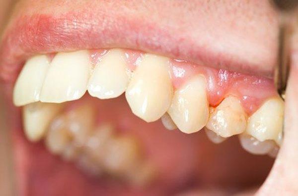 Răng sau khi bọc sứ bị nhức có thể do bệnh lý răng miệng không được điều trị triệt để