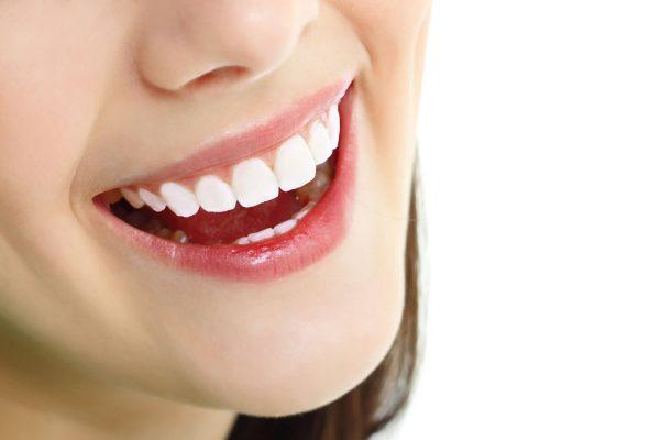 Bọc răng toàn sứ có tuổi thọ cao hơn răng sứ kim loại