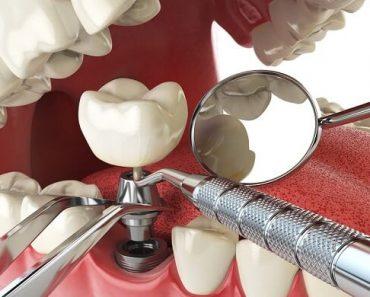 Sau khi cấy ghép implant cần chăm sóc răng miệng cẩn thận
