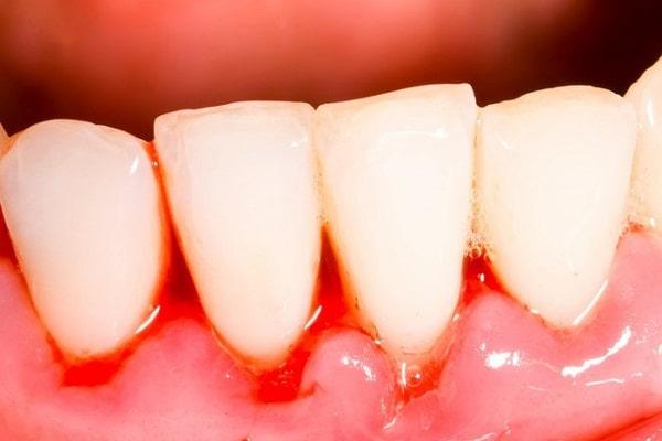 Chảy máu chân răng không nên tẩy trắng răng