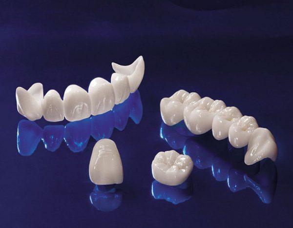Chất liệu răng sứ không kim loại