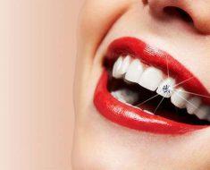 Đính đá vào răng vị trí nào là đẹp phụ thuộc vào tình trạng răng miệng