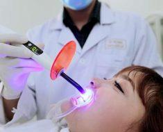 Hàn trám răng bị vỡ có đau không?