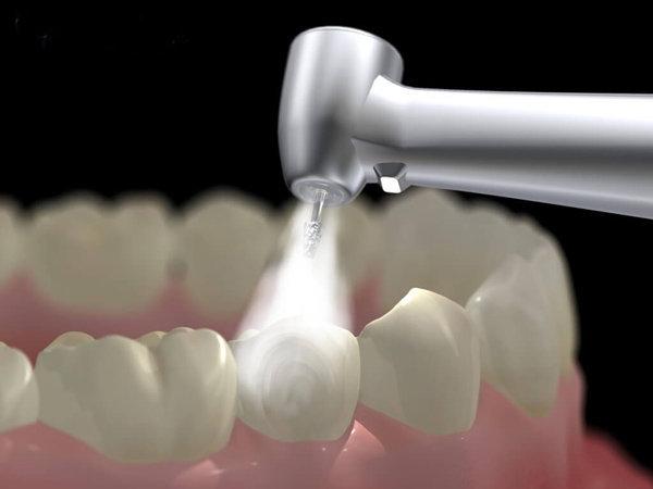 Hàn trám răng là một kỹ thuật đơn giản trong nha khoa