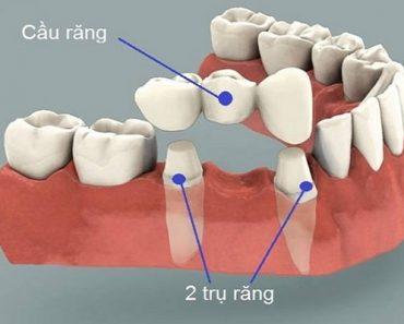 Làm cầu răng sứ có gây hôi miệng không?