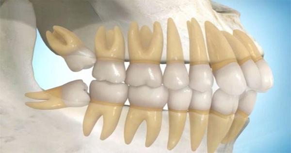 Hiện tượng mọc răng khôn bị đau